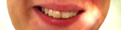 Smiling with Whiter Teeth